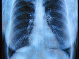 Кто вылечился от рака легких? | форум Woman ru